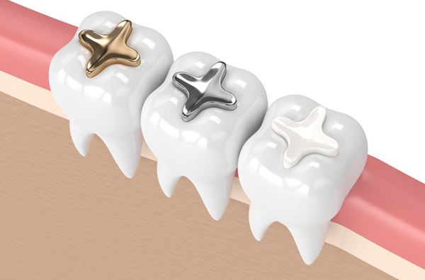 Rendering of teeth with 3 filling materials at Gregory J. Gorman, DMD in Grand Junction, CO.