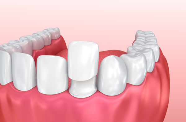 Rendering of jaw with porcelain veneer on tooth.