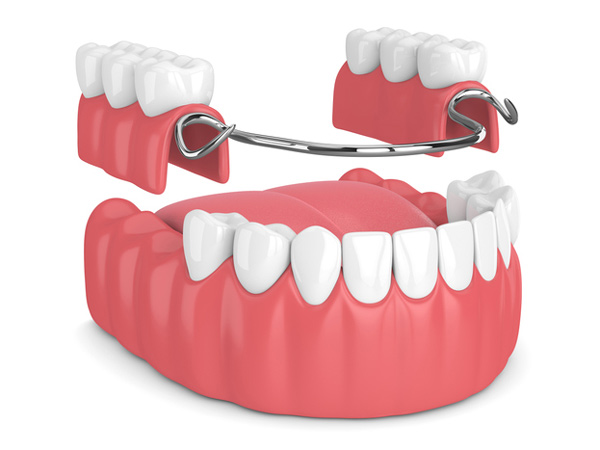 Rendering of removable partial denture available at Gregory J. Gorman, DMD
